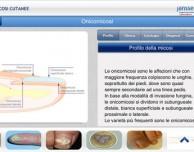 """""""Micosi cutanee"""": la nuova App di Janssen a supporto dei medici nella gestione clinica delle dermatomicosi"""