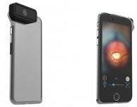 Arriva un nuovo accessorio medico per iPhone