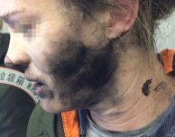 Scoppiano le cuffie Bluetooth, ferite al volto per una donna