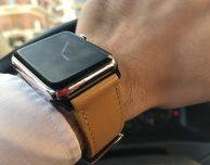 Noreve lancia i suoi cinturini per Apple Watch, ecco la nostra prova!