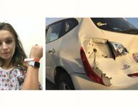 Apple Watch salva la vita ad una donna dopo un incidente stradale