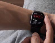 Disponibile watchOS 5.1 per Apple Watch [AGGIORNATO]