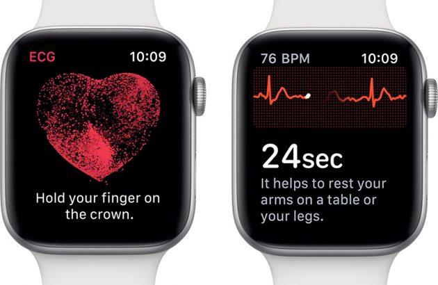 Risultati immagini per apple watch ecg