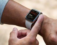 """Apple Watch """"consiglia"""" un'operazione al cuore"""
